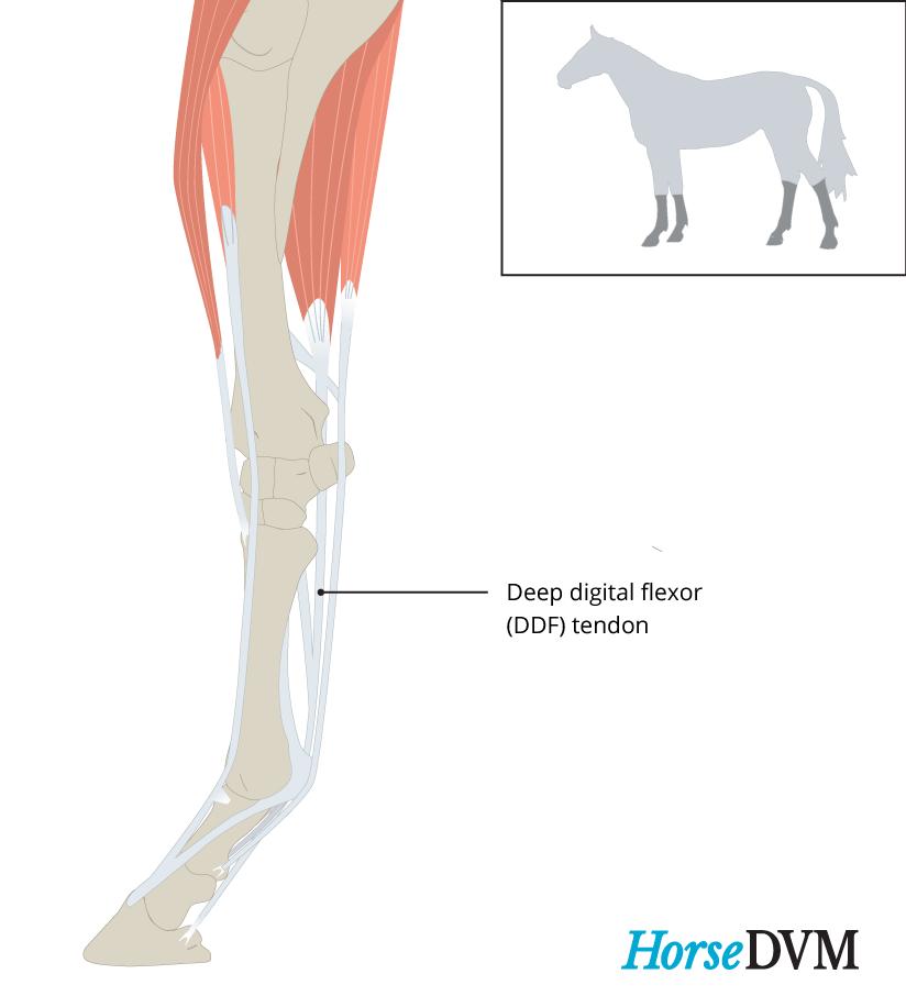 Deep digital flexor tendinitis