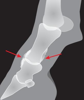 ringbone example image