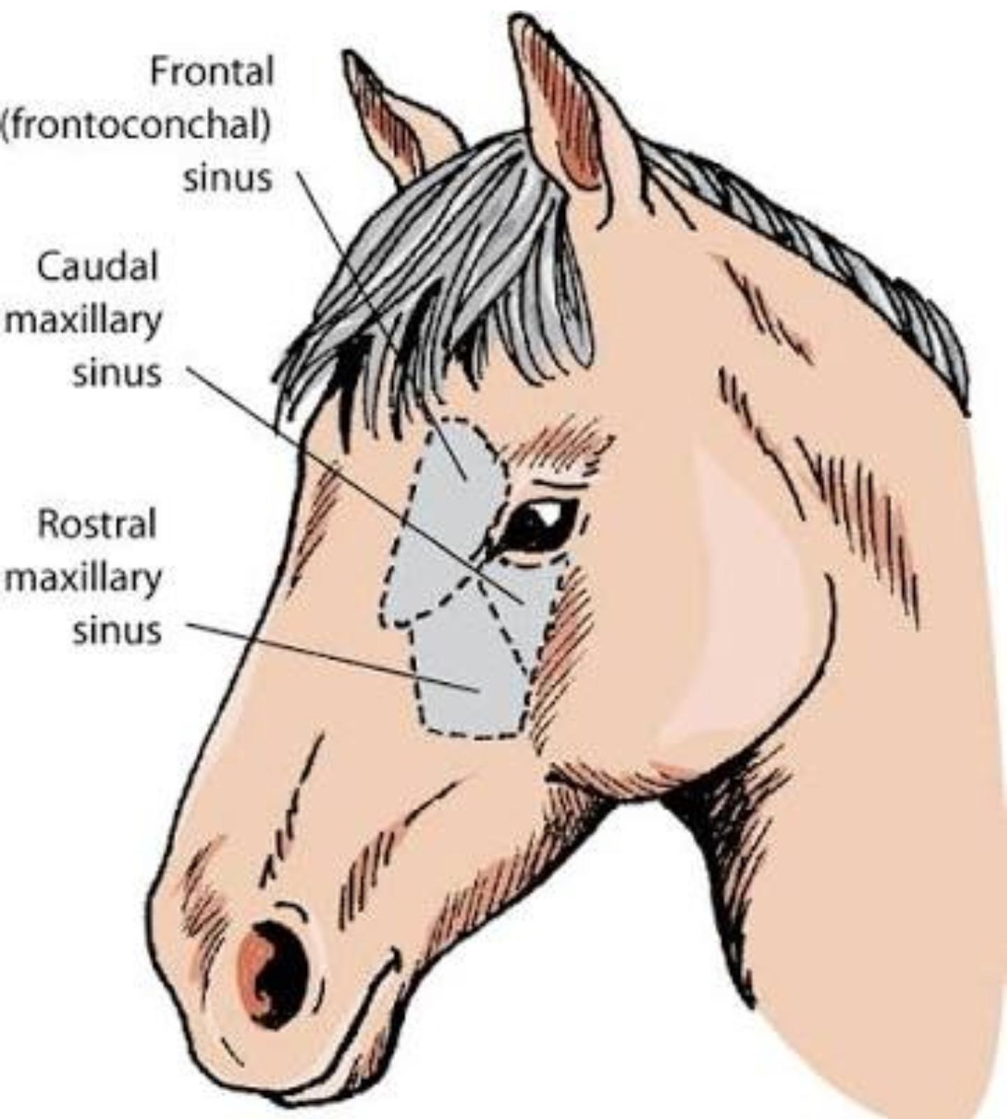 Maxillary Sinus Cyst Case photograph