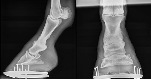 Post-surgery radiographs show the screws and locking compression plate